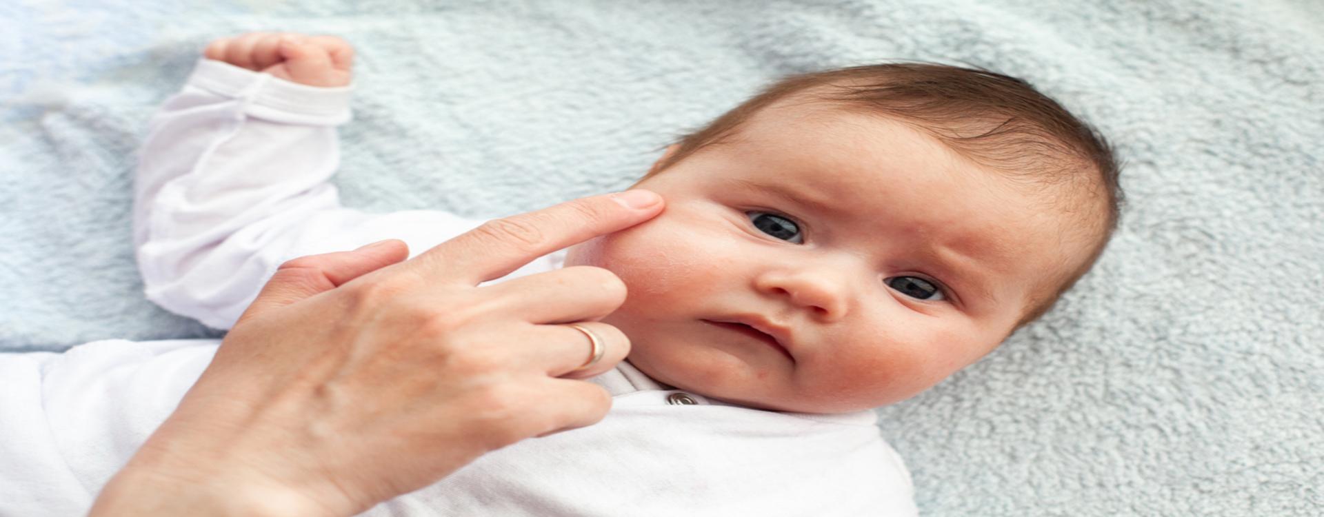 Лечение пеленочного дерматита у детей в домашних условиях