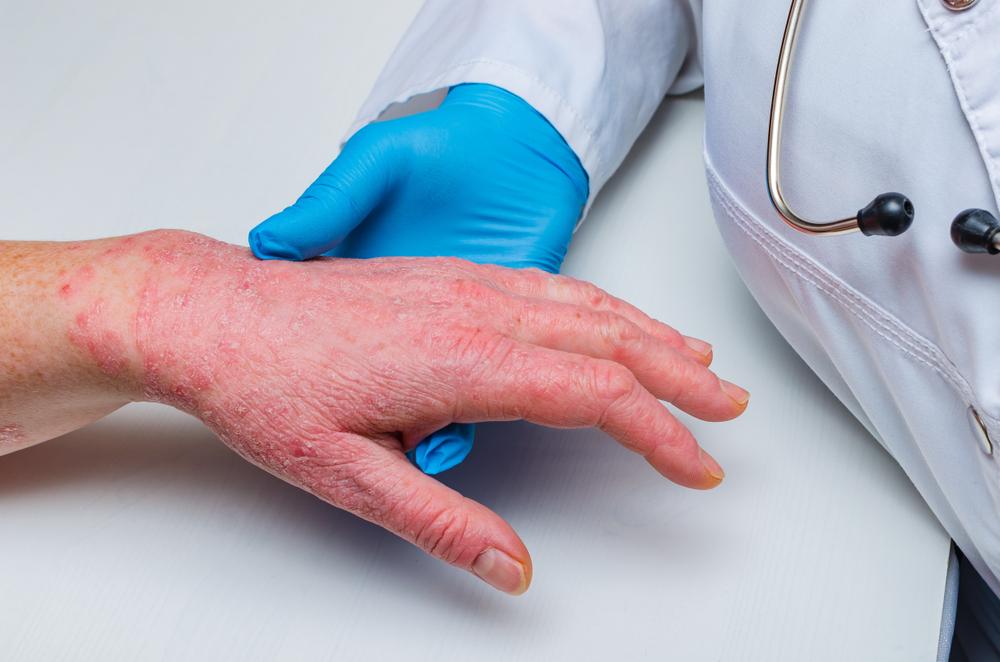 Огляд лікарем дорослого з атопічним дерматитом