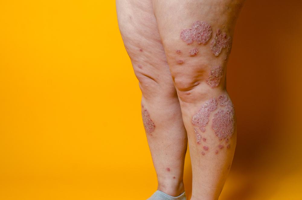 Як виглядає пелюшковий дерматит з лущенням шкіри та папулами на ногах