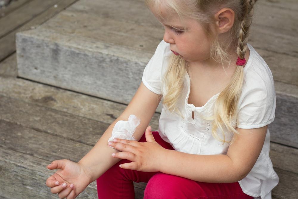 Чтобы остановить пеленочный дерматит у ребенка, нужно наносить крем на пораженный участок